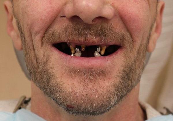 Double all-on-4 с цистэктомией и одномоментной аугментацией на нижней челюсти