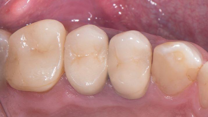 Повторное протезирование зубов 2.4, 2.5 полноанатомическими циркониевыми коронками в технике Vertiprep