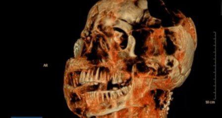 Компьютерная томография показала, что у жители древней Помпеи практически не было кариеса