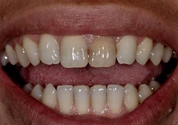 Внутрикоронковое отбеливание 21 зуба