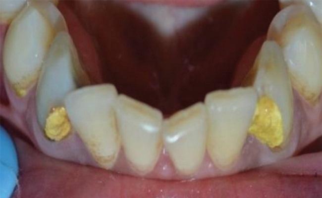 Эндодонтическое лечение нижнего клыка с конфигурацией каналов второго типа