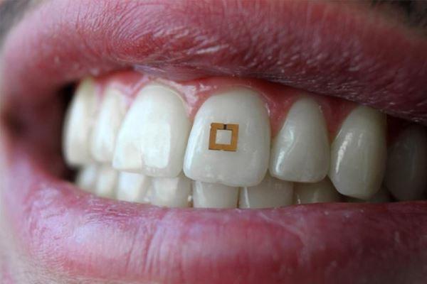 Маленькие зубные датчики для диагностики различных заболеваний организма на ранней стадии с помощью анализа слюны