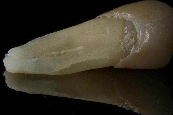 Сравнение диагностической точности КЛКТ и рентгенограммы для определения вертикального перелома корня зуба после эндодонтического вмешательства
