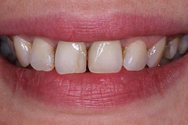Реставрация передних зубов с применением силиконового ключа