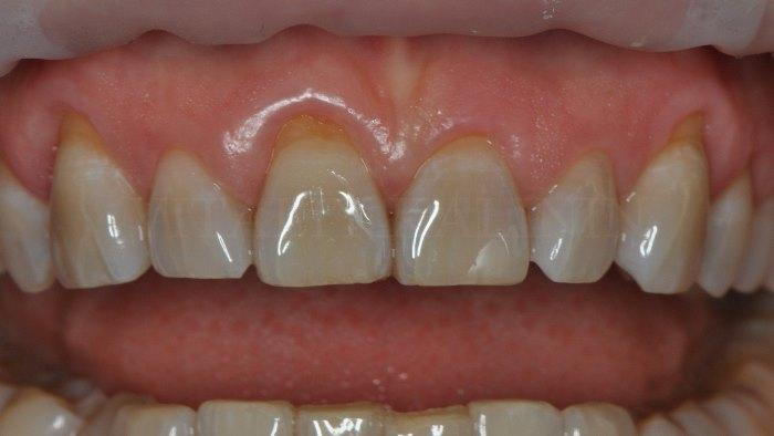 Клинический случай устранения рецессии десны у фронтальной группы зубов