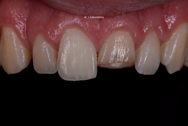 Комплексный подход в интеграции зуба фронтальной группы