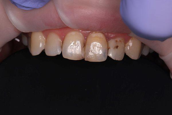 Миниинвазивная реабилитация фронтальных зубов