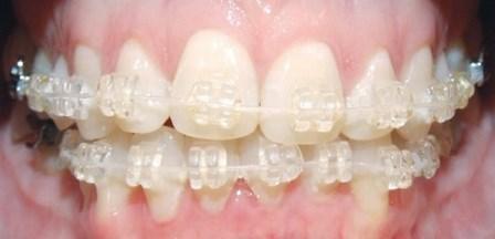 Краткосрочное ортодонтическое лечение