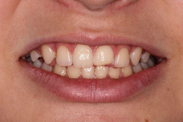Множественная травма передних зубов