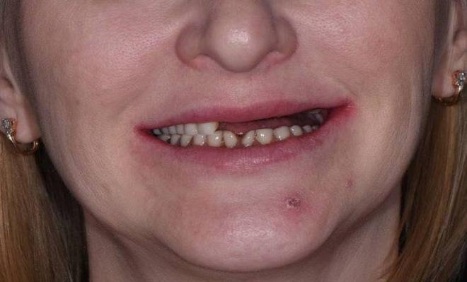 Скуловые имплантаты Zygoma для восстановления верхней челюсти