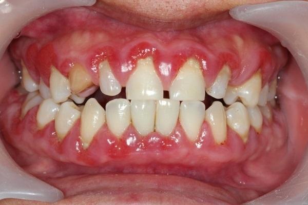 ВИЧ и СПИД: что нужно знать стоматологам? (опыт США)