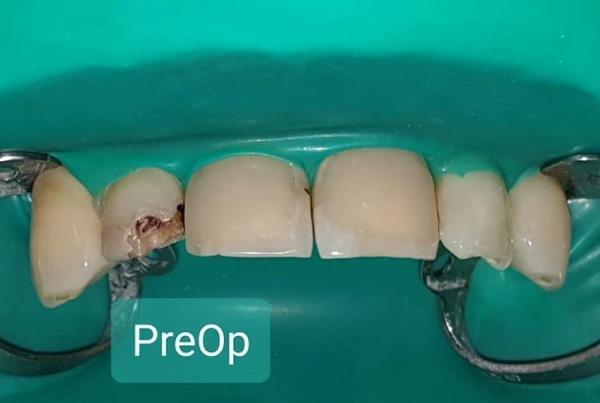 Экстренное восстановление зуба 1.2