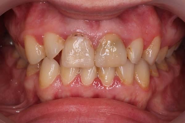 Протезирование фронтальной группы зубов винирами на рефракторе