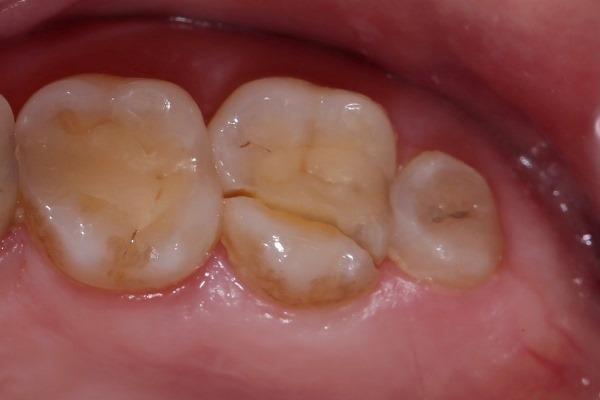 Спасение зуба и подготовка к восстановлению