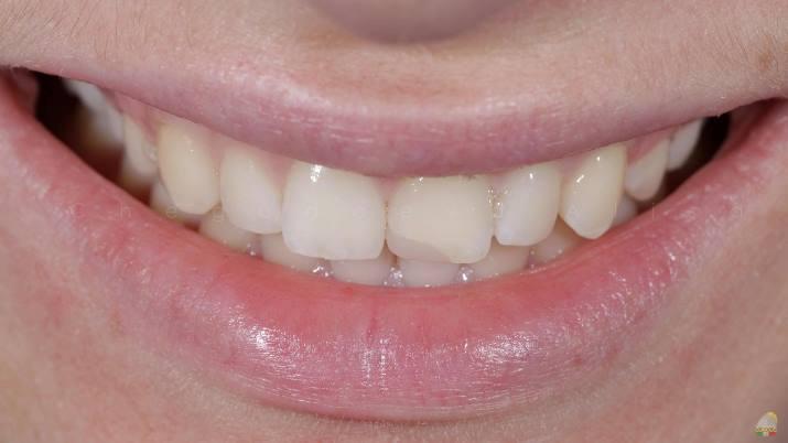 Прямая реставрация зуба 2.1