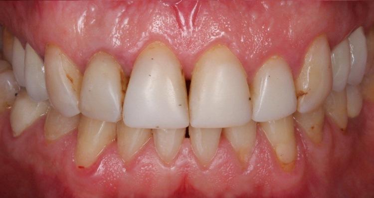Комплексная тотальная реабилитация зубных рядов