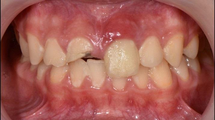 Травма передних зубов