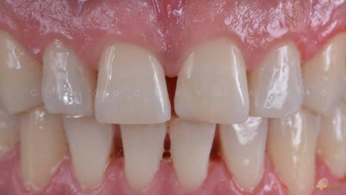 Прямая композитная реставрация зуба 2.1