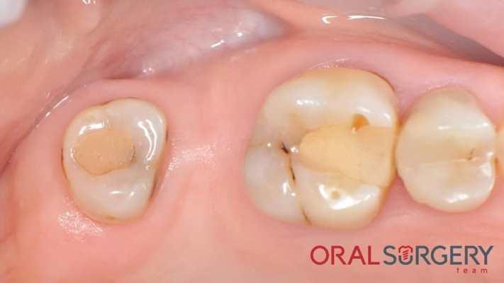 Установка имплантата в область 27 зуба с закрытым синус-лифтингом