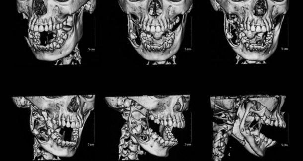Подготовка к ортодонтическому лечению без лучевой нагрузки