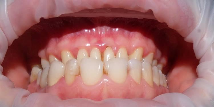 Прямая реставрация фронтальных зубов