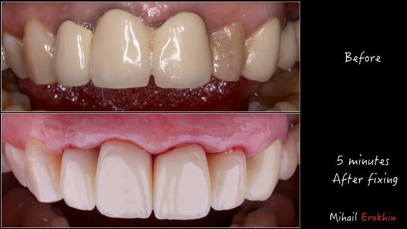 Установка коронки на зуб металлокерамика