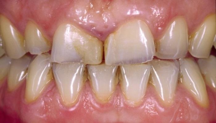Стоматологическая реабилитация с помощью стеклокерамических материалов: анализ долгосрочного результата лечения