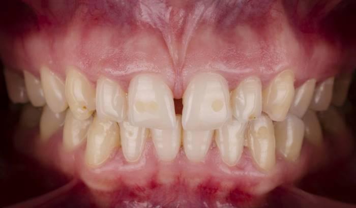 Эстетическая и функциональная реабилитация керамическими винирами Е.max зубов 1.3 - 2.3