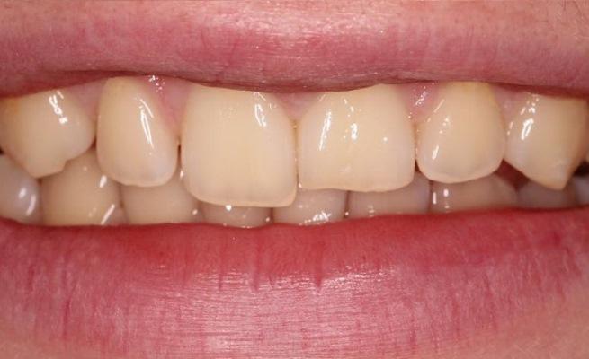 Компенсация стираемости зубов композитом