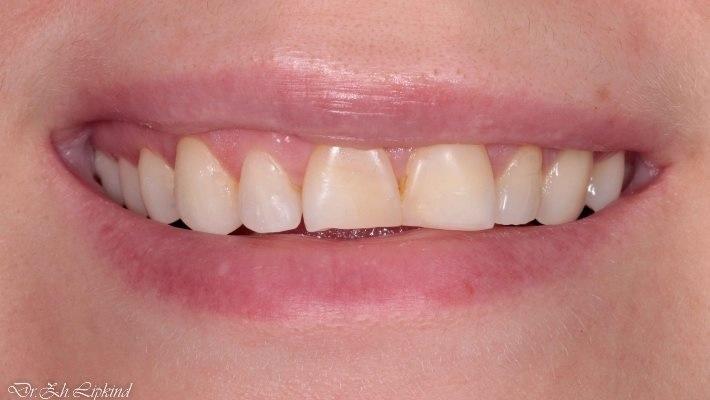 Гармония слоев композитного материала Inspiro в реставрации зубов