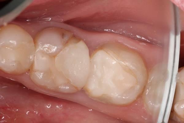 Ортопедическое лечение полуразрушенных зубов