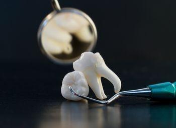 В Германии стоматолог предстал перед судом за сломанный инструмент в канале