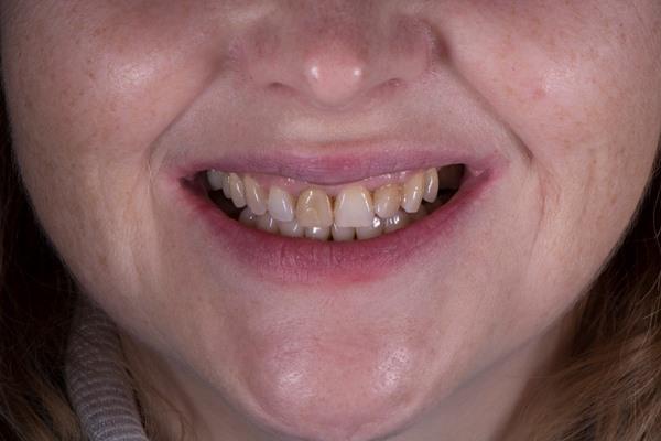 Преображение улыбки четырьмя керамическими винирами, изготовленными на Cerec