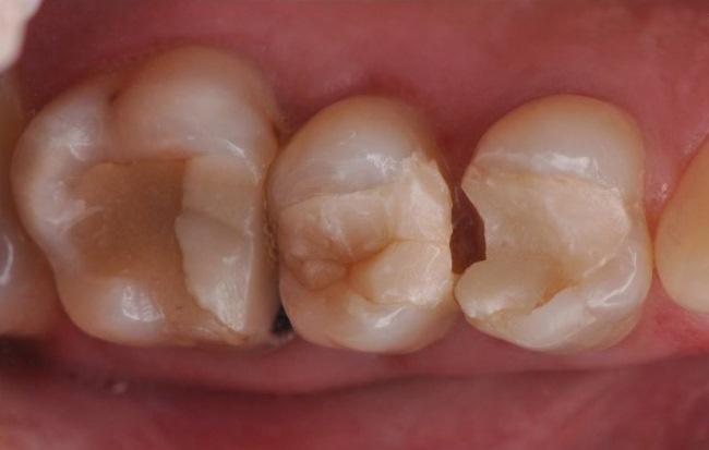 Восстановление боковой группы зубов с помощью непрямых керамических реставраций