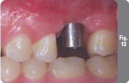 Имплантация с одновременным синус-лифтингом (427) - Имплантология - Новости и статьи по стоматологии - Профессиональный стоматологический портал (сайт) «Клуб стоматологов»
