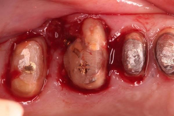 Экстракция 26 зуба с одномоментной имплантацией