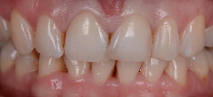 Реставрация с изменением положения зуба