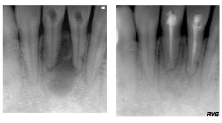 до и после лечения корневых каналов (депофорез)