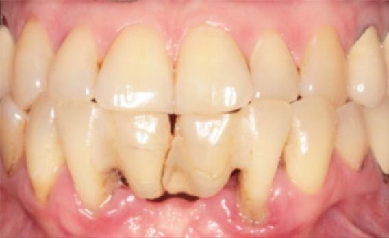 Направленная костная регенерация с одномоментной имплантацией во фронтальном отделе нижней челюсти