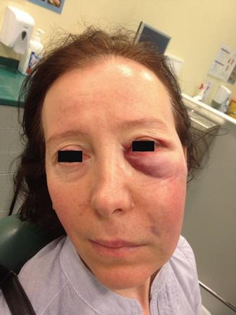 Случайная заапикальная экструзия натрия гипохлорита, диагностированная при помощи томографического исследования
