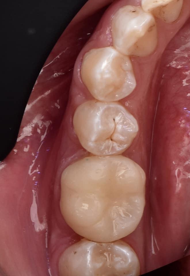 момента зуб шестерка на картинке они живут удивительной