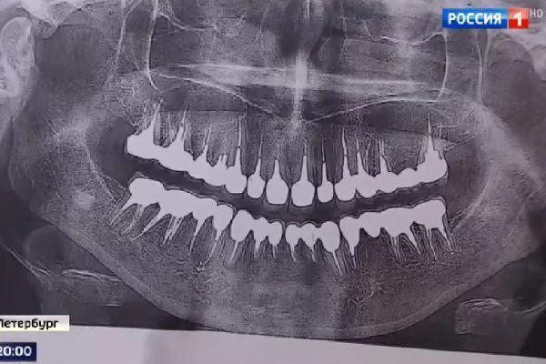 """История про """"22 удаленных зуба"""" - ответ врачей (видео)"""