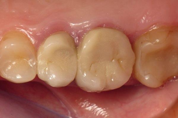 Когда прямая и непрямая реставрации в различных комбинациях направлены на сохранение стоматологического здоровья пациента
