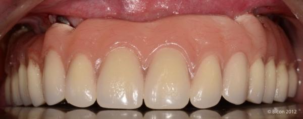 Фотография верхнечелюстного протеза TRINIA после окончательного цементирования.