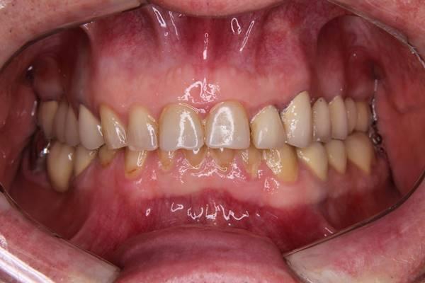 Тотальная реконструкция окклюзии в нейромышечном подходе при генерализованной стираемости зубов