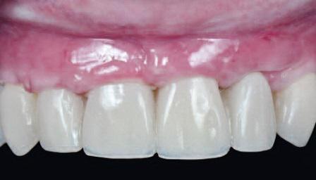 Прогнозированная процедура направленной костной регенерации во фронтальной зоне с акцентом на эстетике