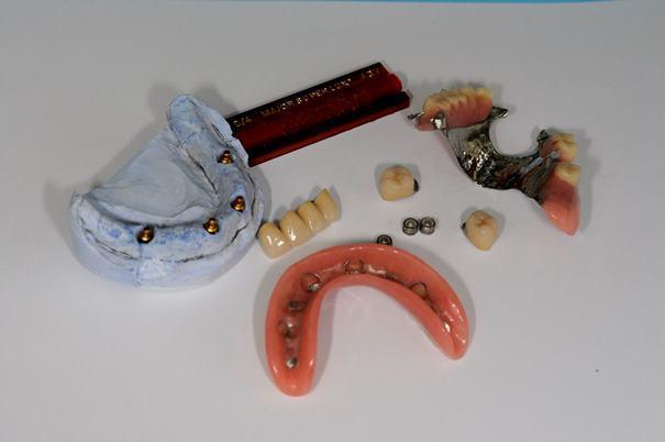 Комплексное протезирование верхней и нижней челюсти