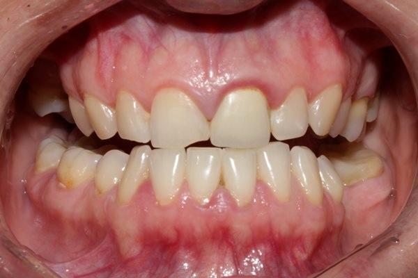 Восстановление эстетики улыбки при помощи двух полевошпатных керамических реставраций