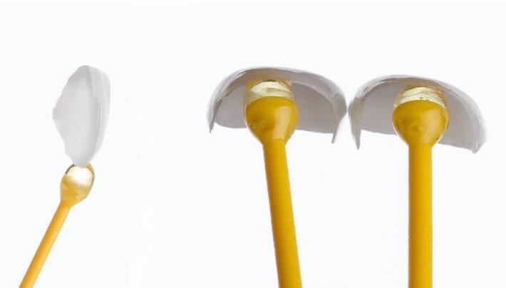Эстетическая и функциональная реабилитация пациента с врожденным отсутствием 12 и 22 зубов