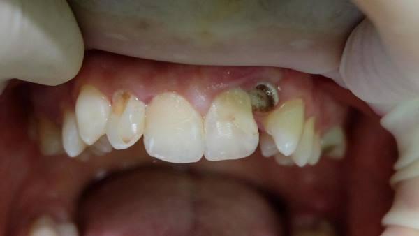 Условно-временные композитные реставрации на период ортодонтического лечения